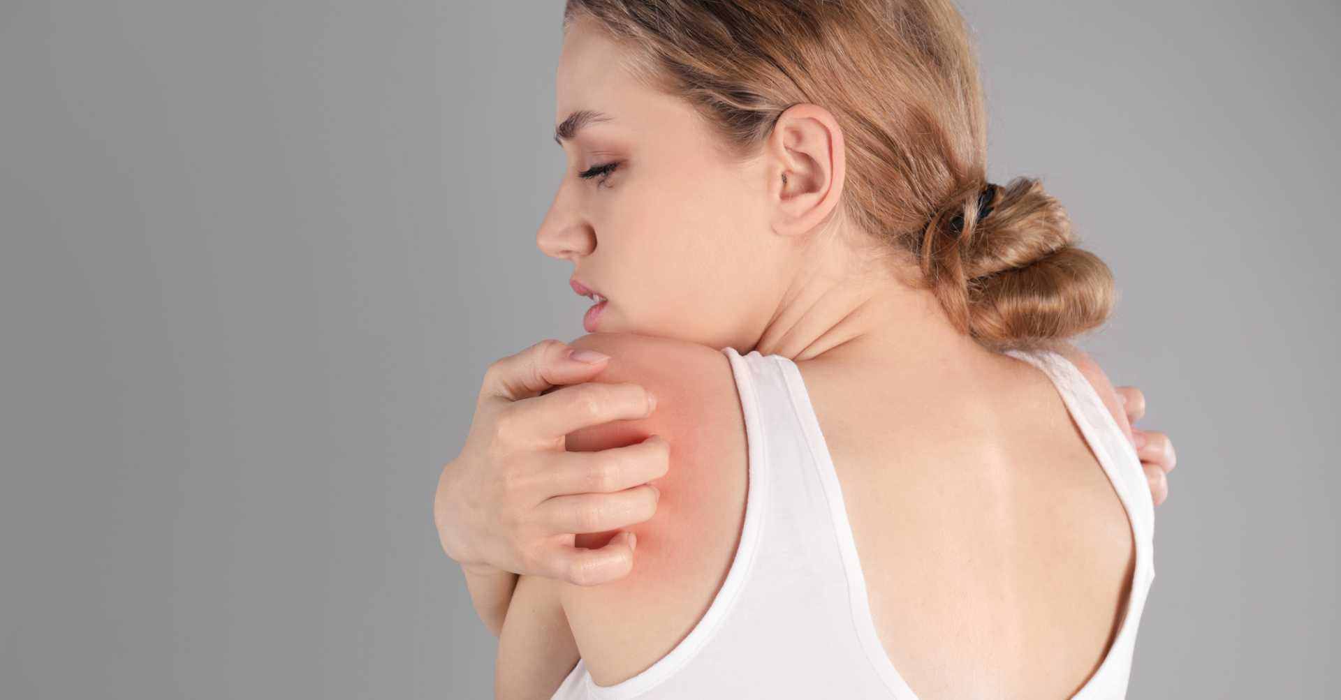 woman scratching her back that has prickly heat rash